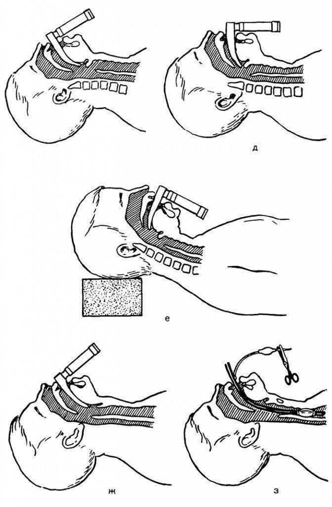 Осложнения интубации трахеи : причины заболевания, основные симптомы, лечение и профилактика