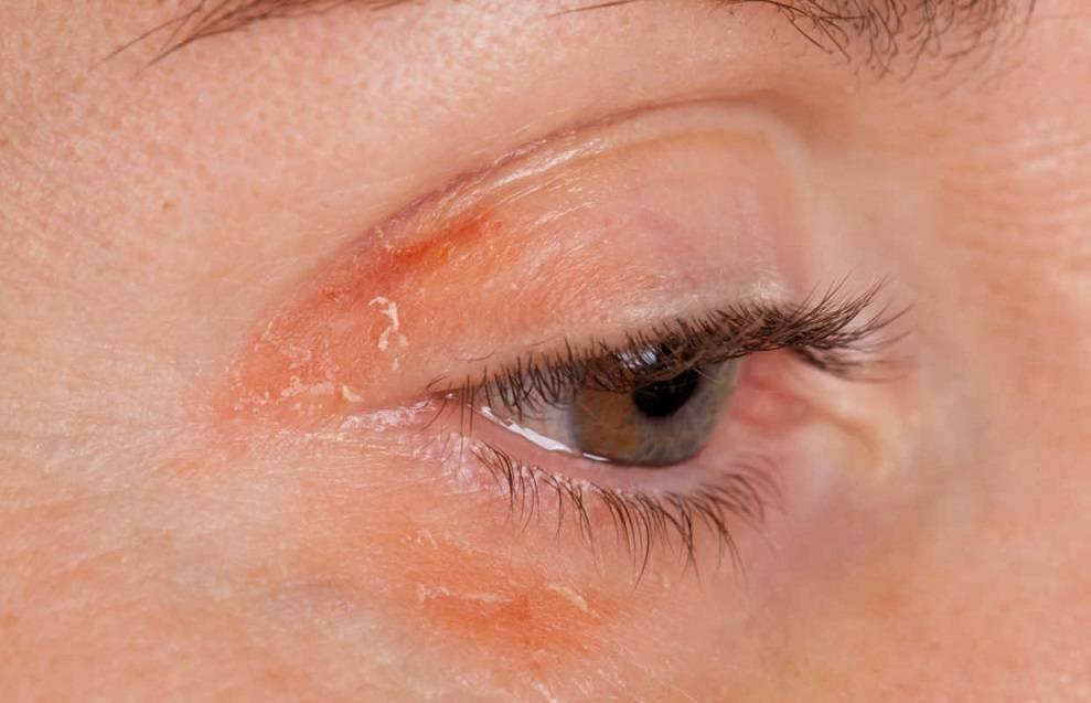 Подкожные паразиты у человека симптомы и лечение