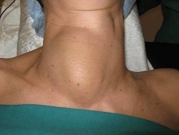 Гиперплазия 1 степени щитовидной железы что это такое