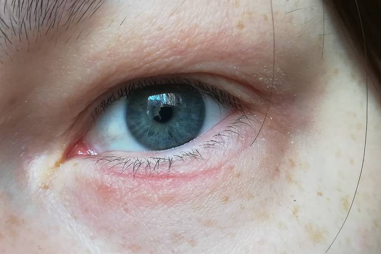 На веке появились красные точки. причины появления красных точек на веке глаза