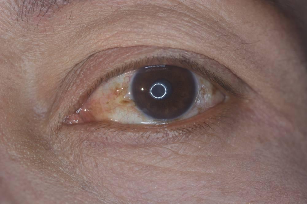 Пингвекула глаза: причины возникновения у взрослых и методы лечения