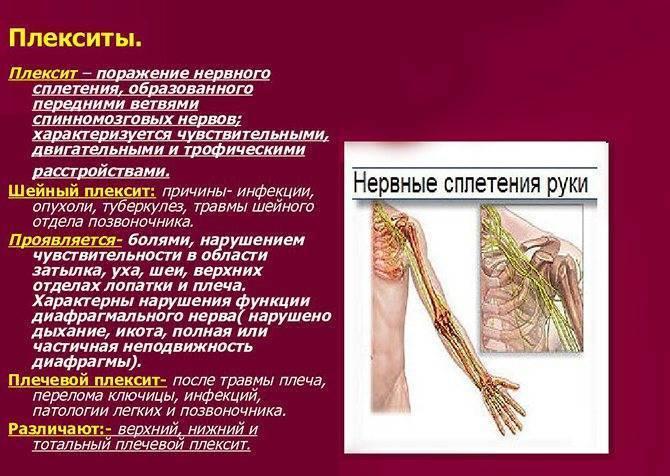 Невралгия плечевого нерва: симптомы, лечение