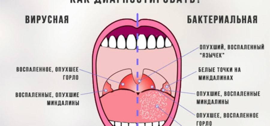 Болит горло без температуры: долго, сильно, без видимых причин. как лечить больное горло, если нет температуры, нужно ли его лечить