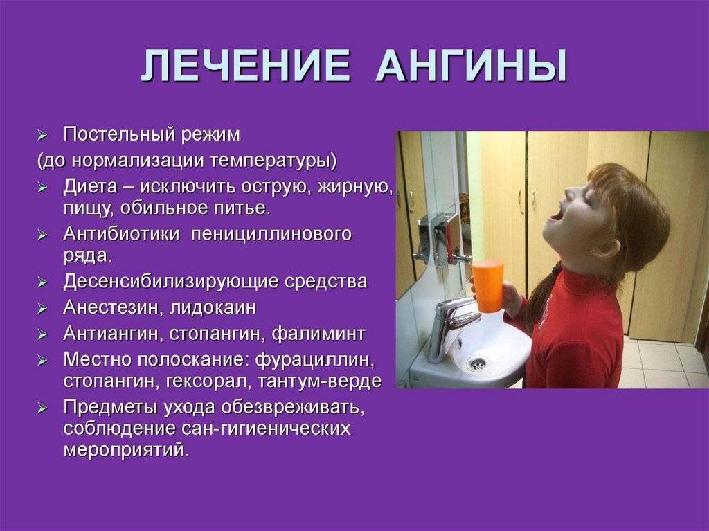 лекарства от тонзиллита