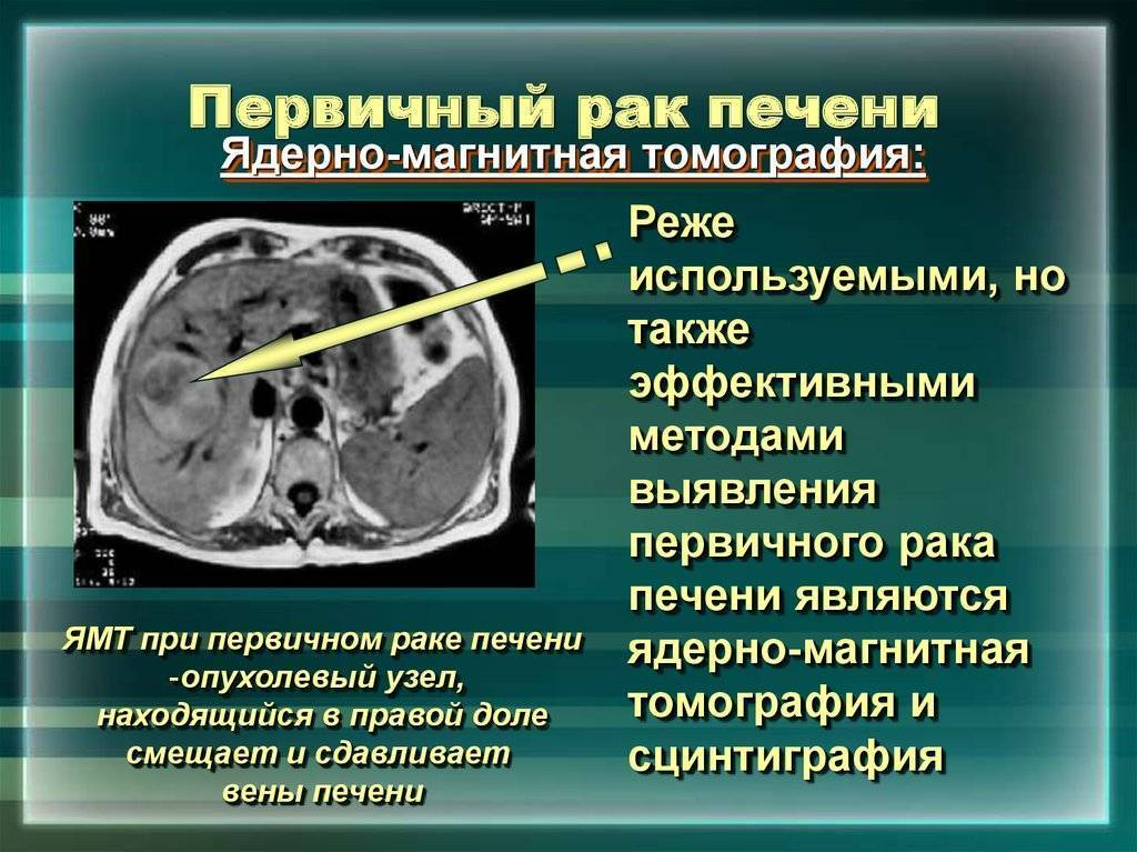 рак печени прогноз выживаемости