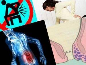 Цистит болит поясница боли внизу живота