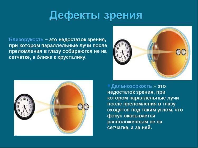 Очки на плюс это дальнозоркость или близорукость