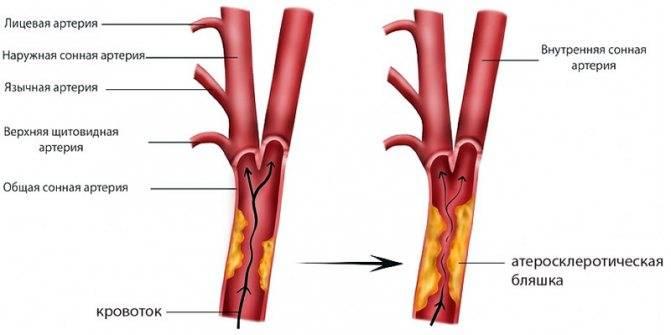 Атеросклероз бца: что это такое, причины, симптомы и лечение
