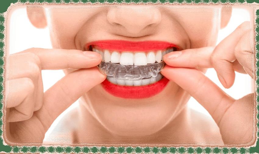 выравнивание зубов в домашних условиях