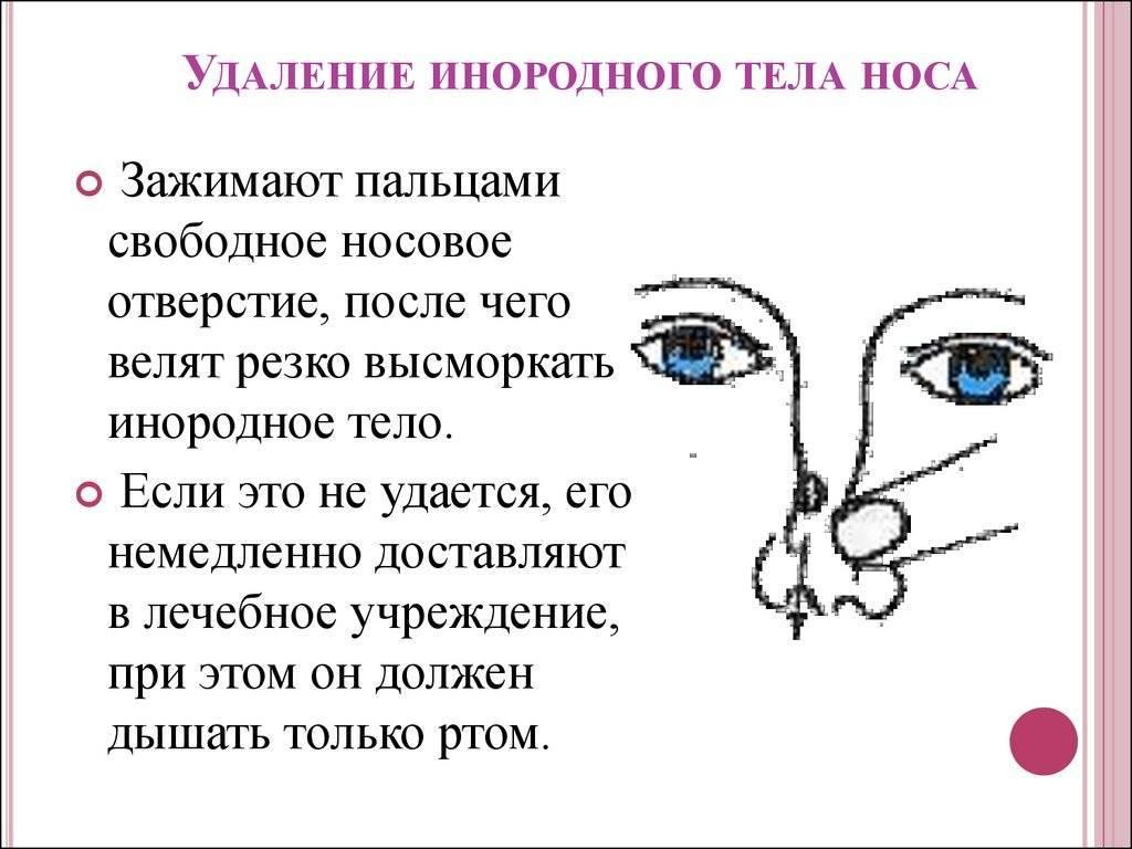 как вытащить из носа ребенка инородное тело