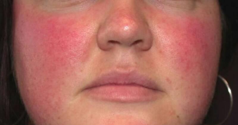 Как избавиться от дерматита на лице у взрослых: как лечить пероральный, атопический и контактный