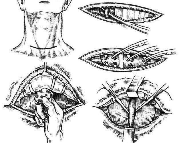 заболевания щитовидной железы хирургия