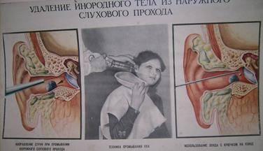 ощущение инородного тела в ухе