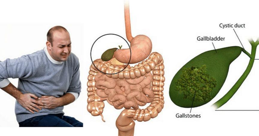 Желчнокаменная болезнь: симптомы, диагностика и тактика лечения