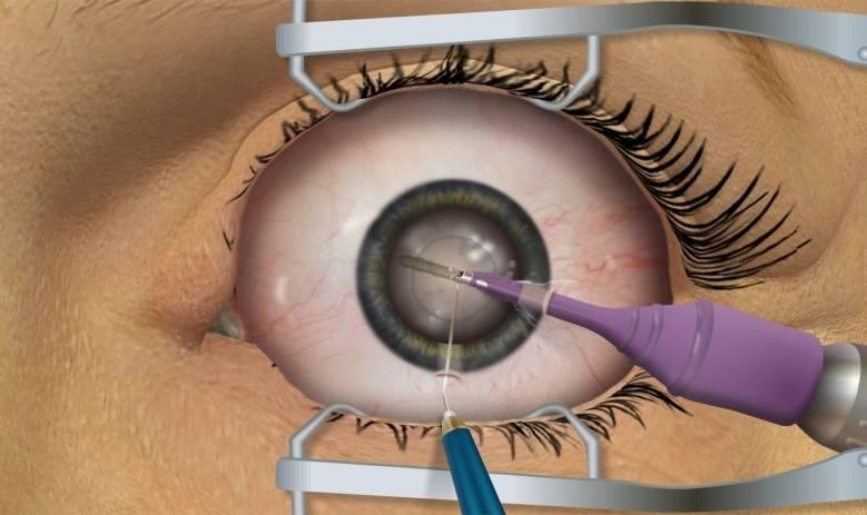 Немецкие искусственные хрусталики для глаз при катаракте (иол) - zeiss (цейс)