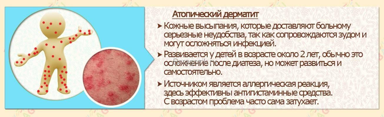 Лечение дерматита у детей чистотелом
