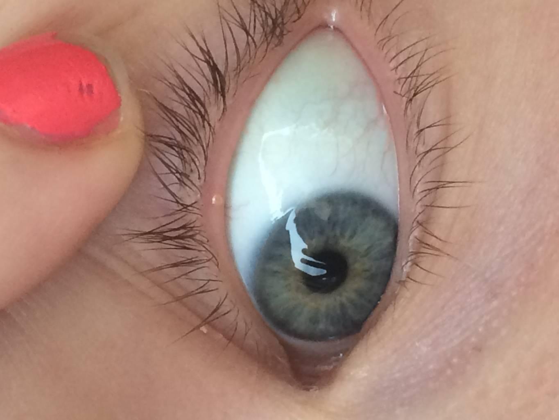 На глазу пузырек и болит глаз