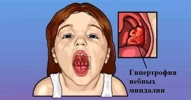 Гипертрофия миндалин iii-й степени.... - запись пользователя dominoshka (margaritkaapril) в сообществе здоровье - от трех до шести лет в категории лор (отит, насморк и проч) - babyblog.ru