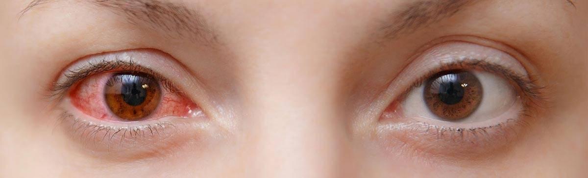 Аллергический конъюнктивит у ребёнка: признаки, лечение, профилактика