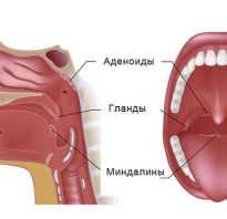 аденоиды симптомы