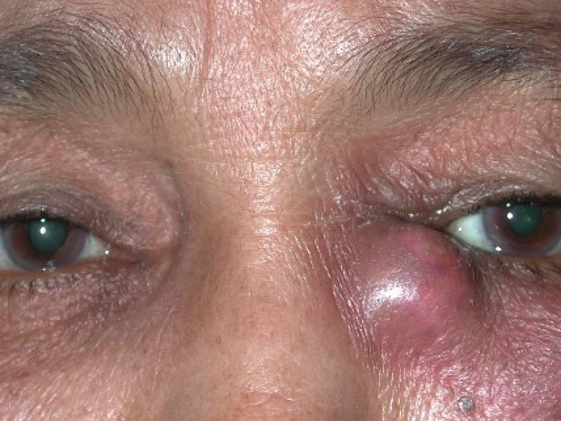 Воспаление слезных желез симптомы и лечение