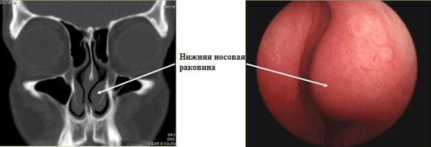 гипертрофия слизистой носа лечение