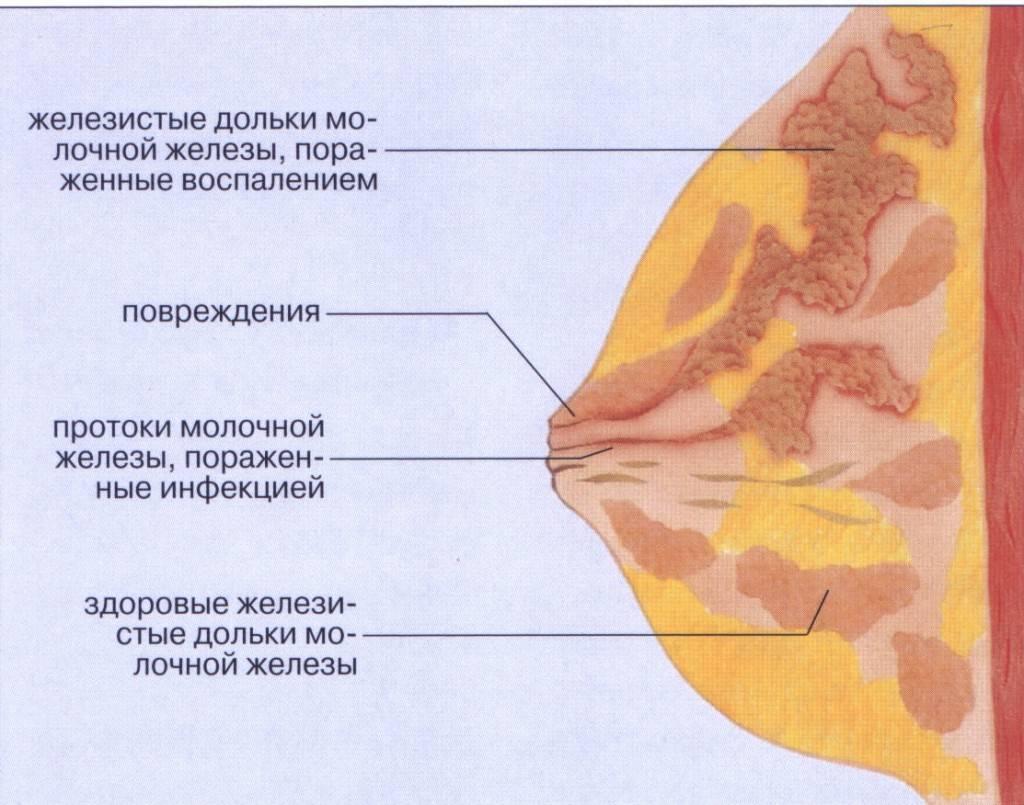 для лактостаза характерно