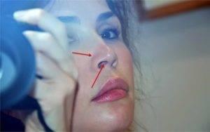 Кровотечение из носа — причины, лечение и первая помощь