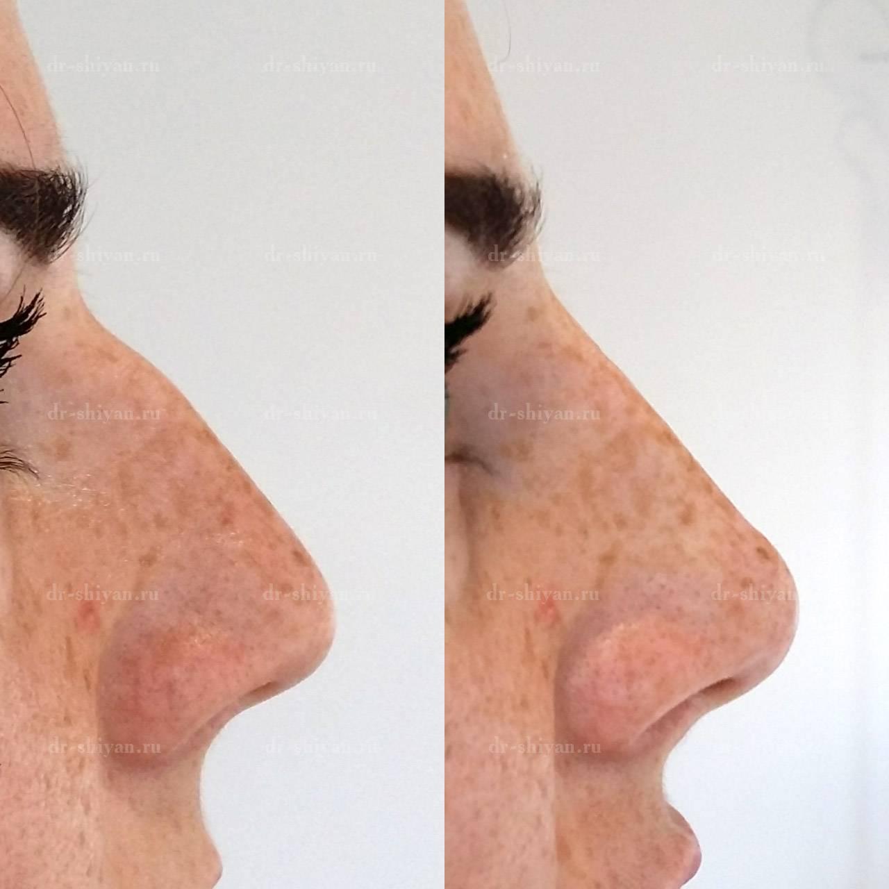уменьшить нос без операции