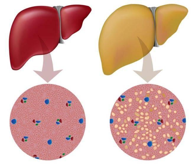 жировой гепатоз у беременных