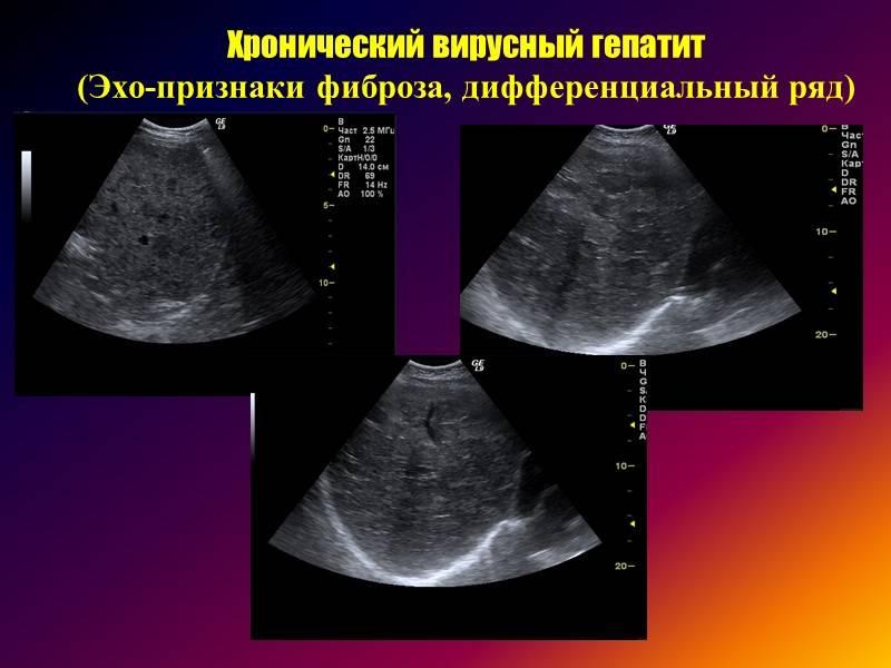 гепатомегалия диффузные изменения печени по типу жирового гепатоза