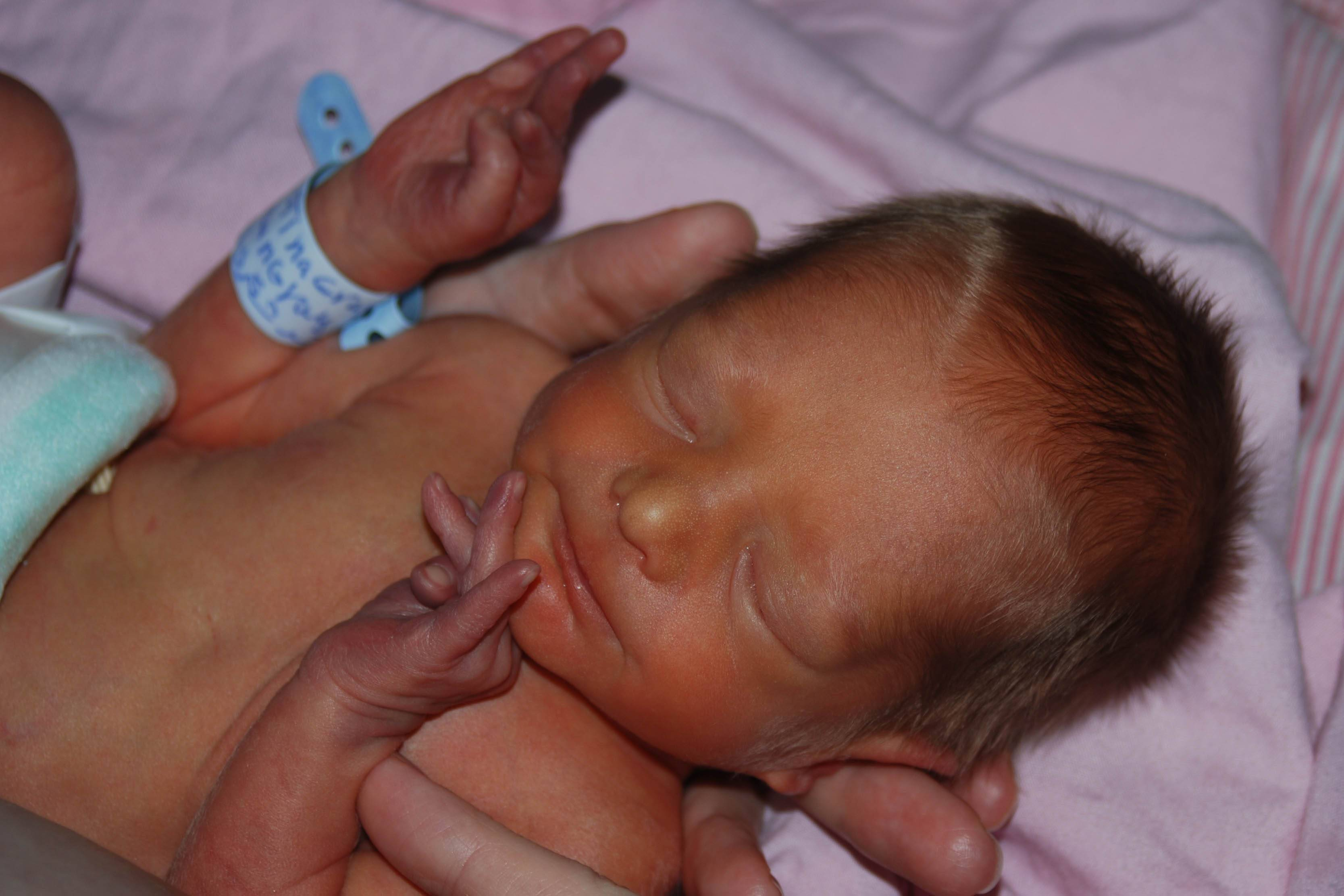 физиологическая желтуха у новорожденных лечение