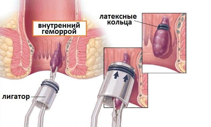 Лигирование латексными кольцами геморроидальных узлов