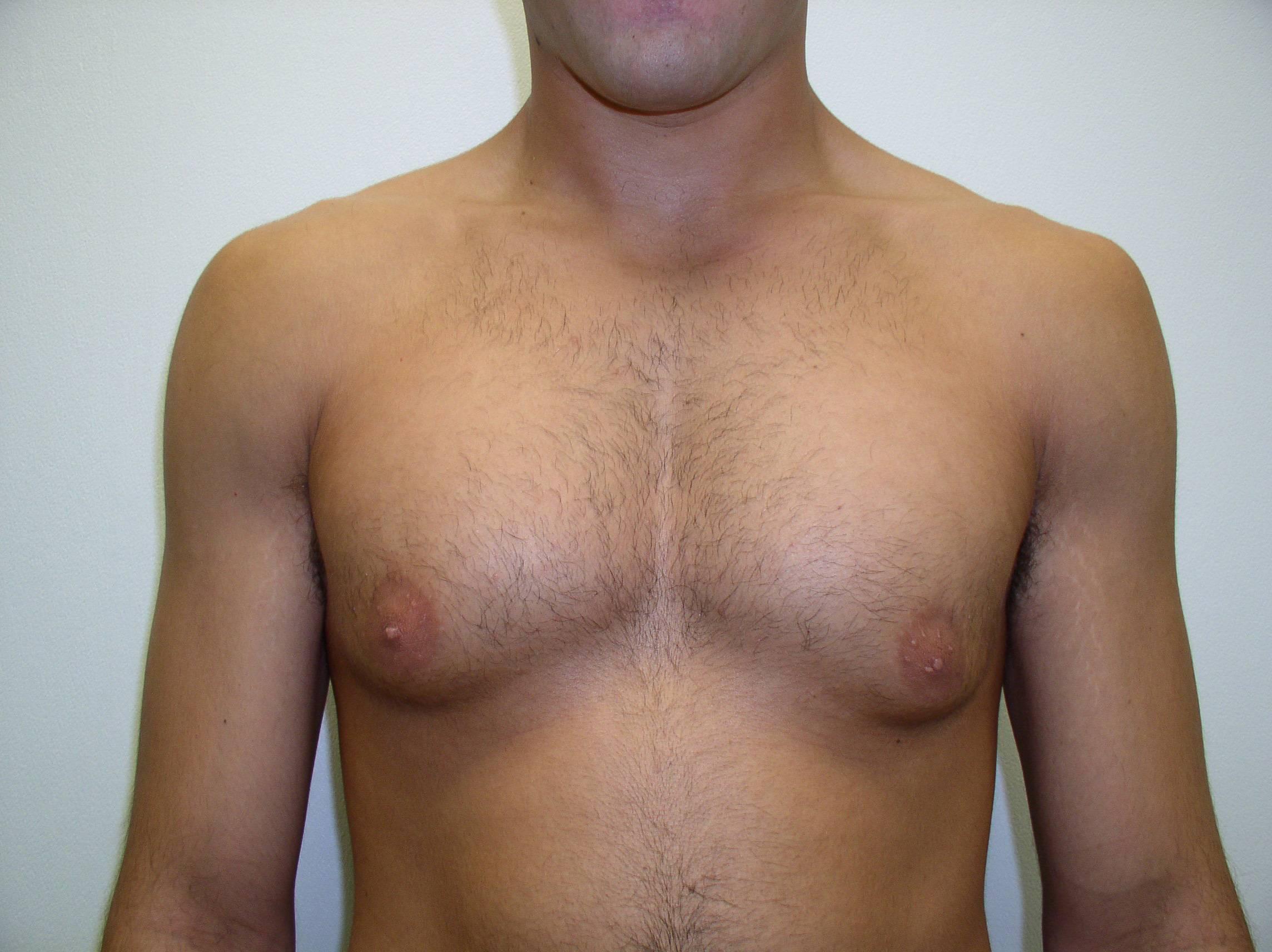 Гинекомастия у мужчин (истинная и ложная): причины и симптомы, лечение без операции, удаление, средства в домашних условиях + фото