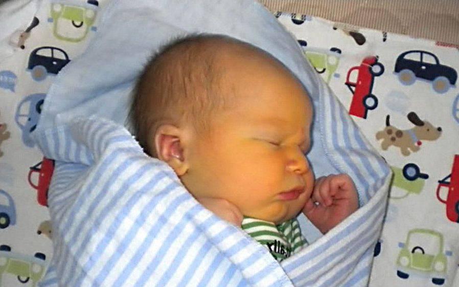 Желтая кожа у малыша – патологическая желтуха у новорожденных