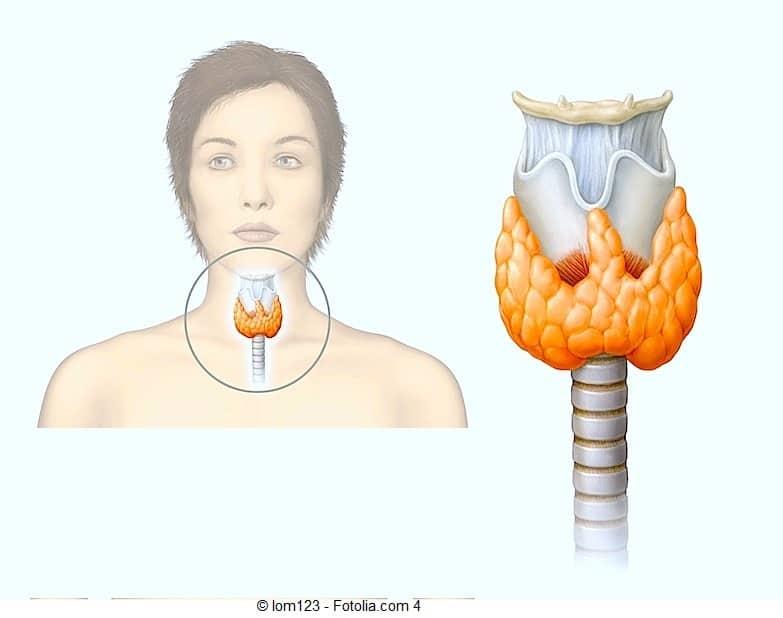 Лечение аутоиммунного тиреоидита (аит) народными средствами