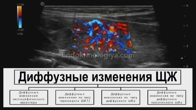 Неоднородная структура щитовидной железы:  эндокринология и беременность