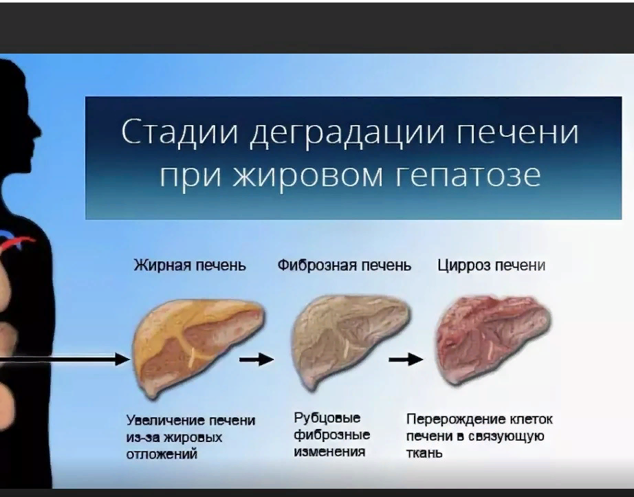 Жировой гепатоз печени лечение народными средствами