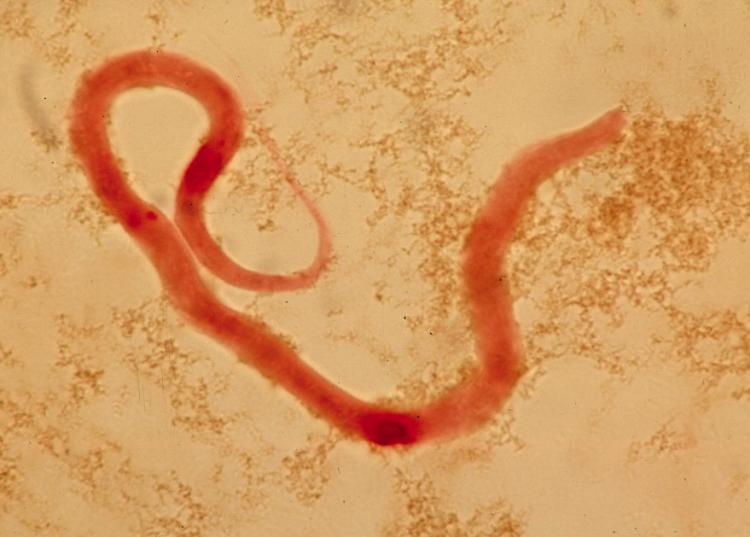 Инфекционные и паразитарные болезни человека, лечение и профилактика