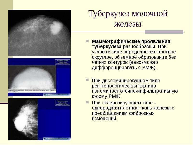 Узловая мастопатия молочной железы операция
