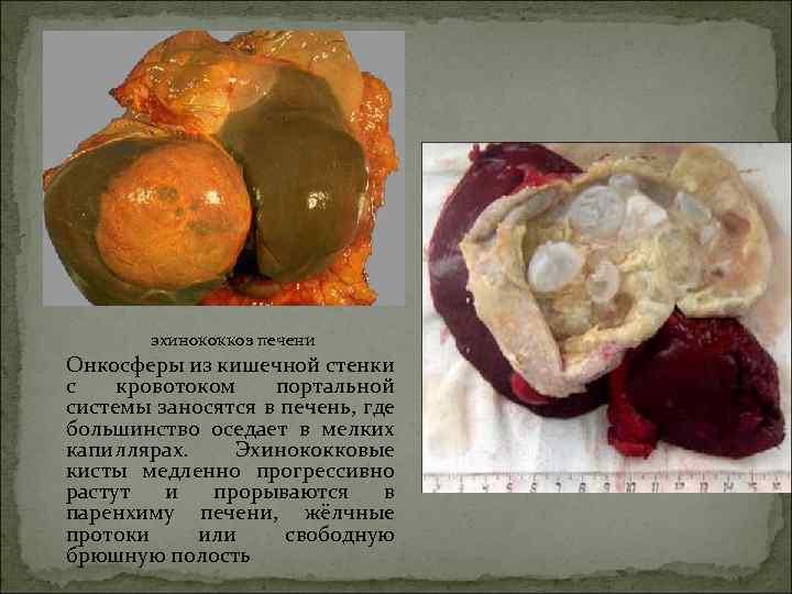 лечение эхинококкоза печени