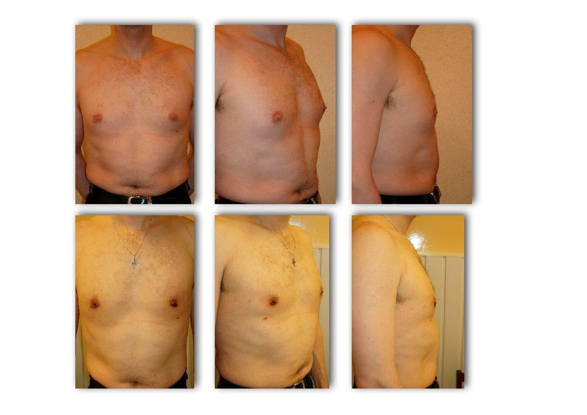 Гинекомастия у мужчин: лечение без операции и прогноз болезни