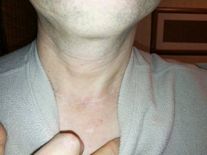 диета после удаления щитовидки