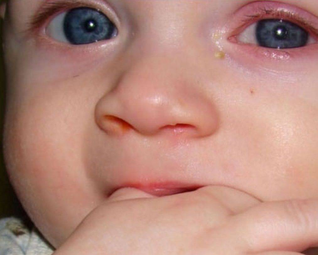 выделения из глаза у ребенка