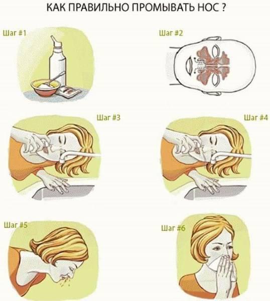 как промывать нос натрия хлоридом