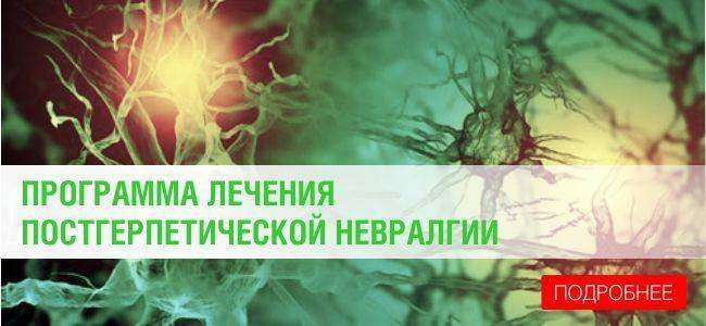 герпетическая невралгия лечение