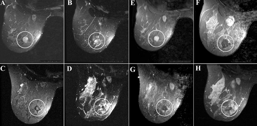 Фиброаденома молочной железы – симптомы, лечение, размеры для операции