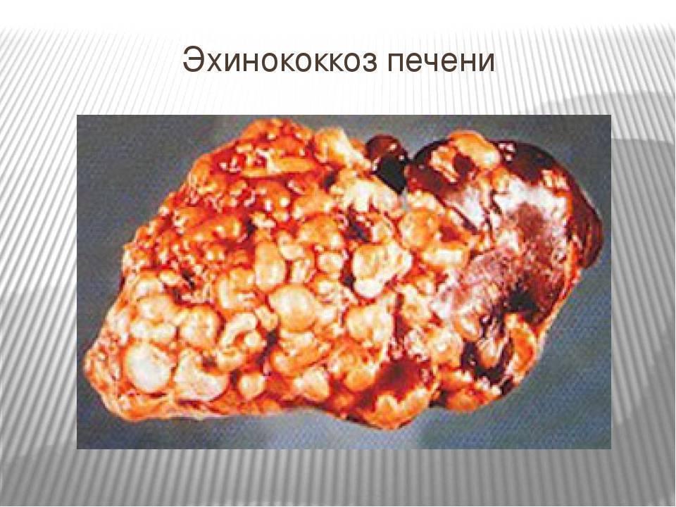 Эхинококкоз печени и эхинококковые кисты: диагностика и лечение