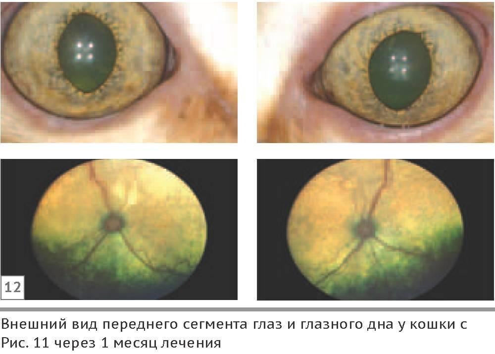 Как люди слепнут. какие есть виды слепоты? формы слепоты и степень её выраженности