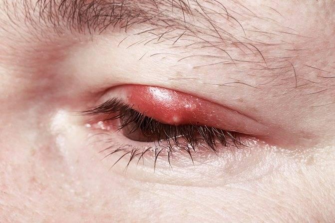 герпес глаза